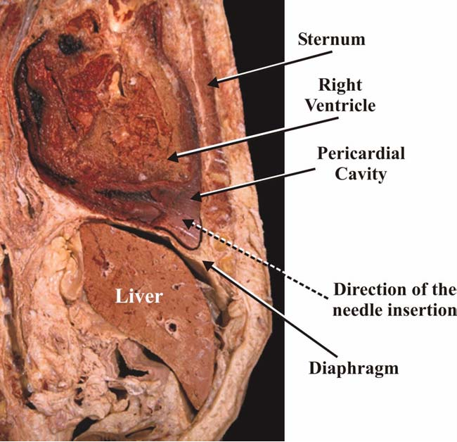 Figure 3 From Pericardiocentesis A Clinical Anatomy Review
