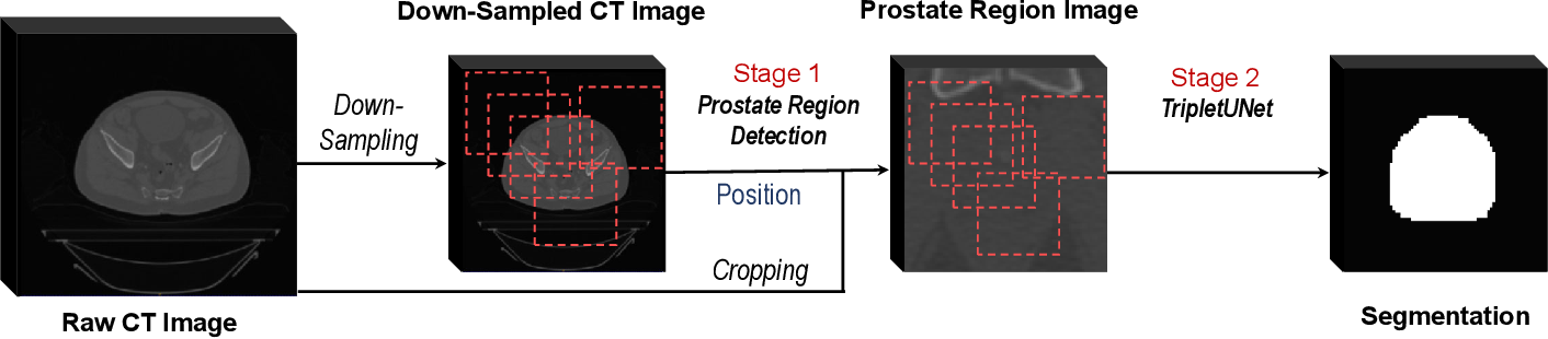 Figure 4 for TripletUNet: Multi-Task U-Net with Online Voxel-Wise Learning for Precise CT Prostate Segmentation