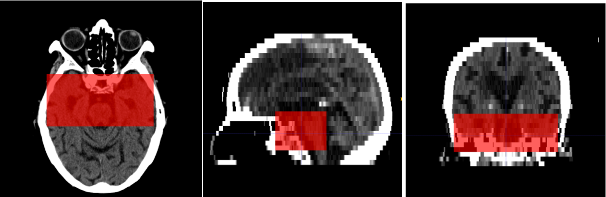 Figure 3 for Automated Segmentation for Hyperdense Middle Cerebral Artery Sign of Acute Ischemic Stroke on Non-Contrast CT Images