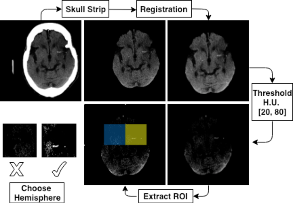 Figure 4 for Automated Segmentation for Hyperdense Middle Cerebral Artery Sign of Acute Ischemic Stroke on Non-Contrast CT Images