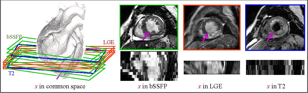 Figure 1 for Multivariate mixture model for myocardium segmentation combining multi-source images