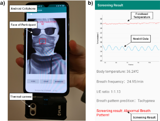 Figure 1 for Combining Visible Light and Infrared Imaging for Efficient Detection of Respiratory Infections such as COVID-19 on Portable Device