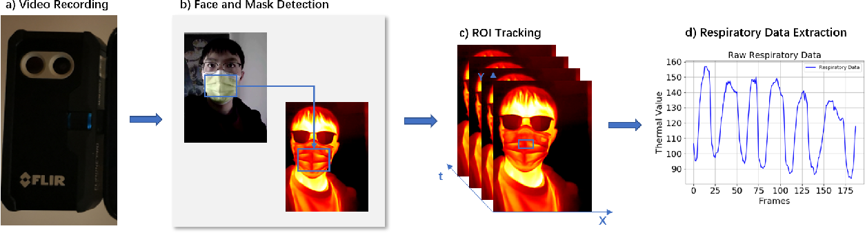 Figure 3 for Combining Visible Light and Infrared Imaging for Efficient Detection of Respiratory Infections such as COVID-19 on Portable Device