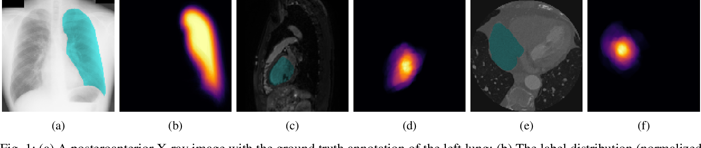 Figure 1 for Towards Robust Medical Image Segmentation on Small-Scale Data with Incomplete Labels
