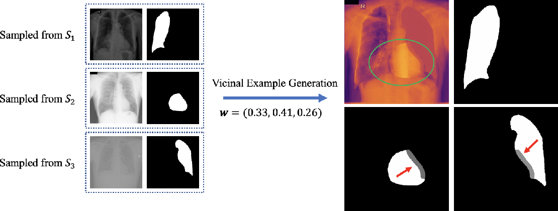 Figure 2 for Towards Robust Medical Image Segmentation on Small-Scale Data with Incomplete Labels