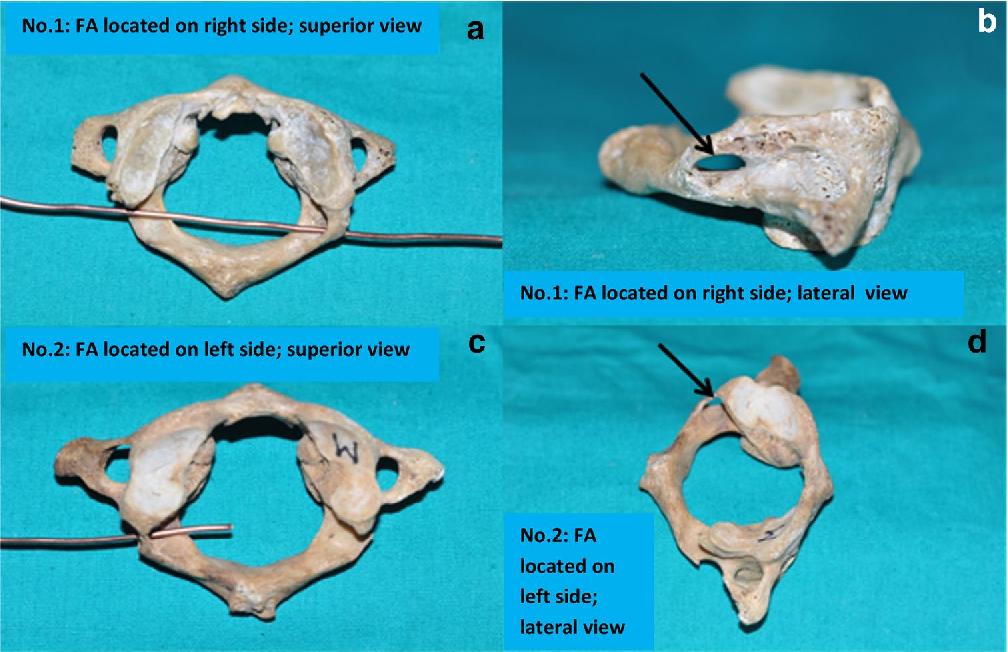 Foramen Arcuale A Rare Morphological Variation Located In Atlas