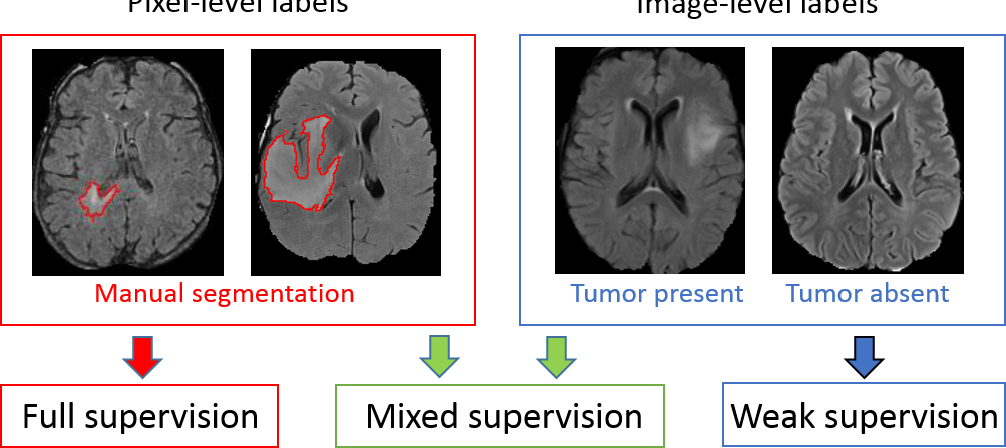 Figure 1 for Deep Learning with Mixed Supervision for Brain Tumor Segmentation