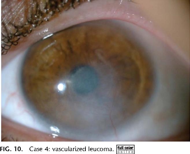 Figure 10 from Contact Lens-Related Acanthamoeba Keratitis