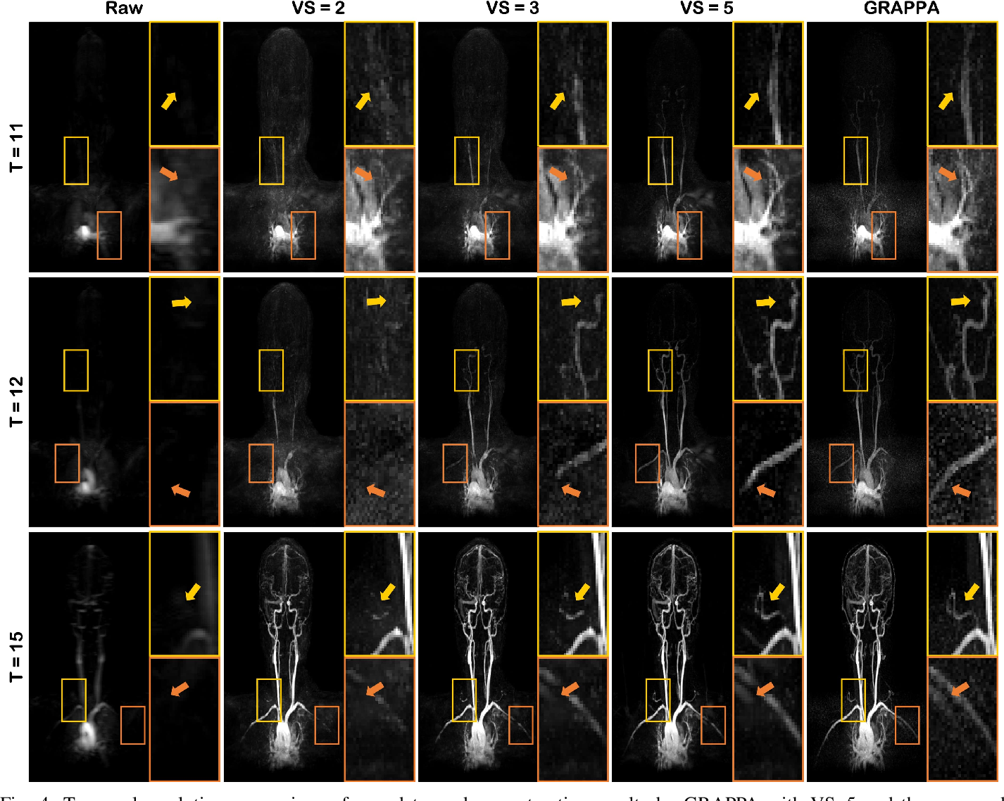 Figure 4 for Unsupervised Deep Learning for MR Angiography with Flexible Temporal Resolution