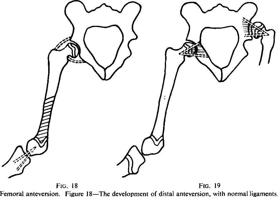 Prime Factors In The Etiology Of Congenital Dislocation Of The Hip