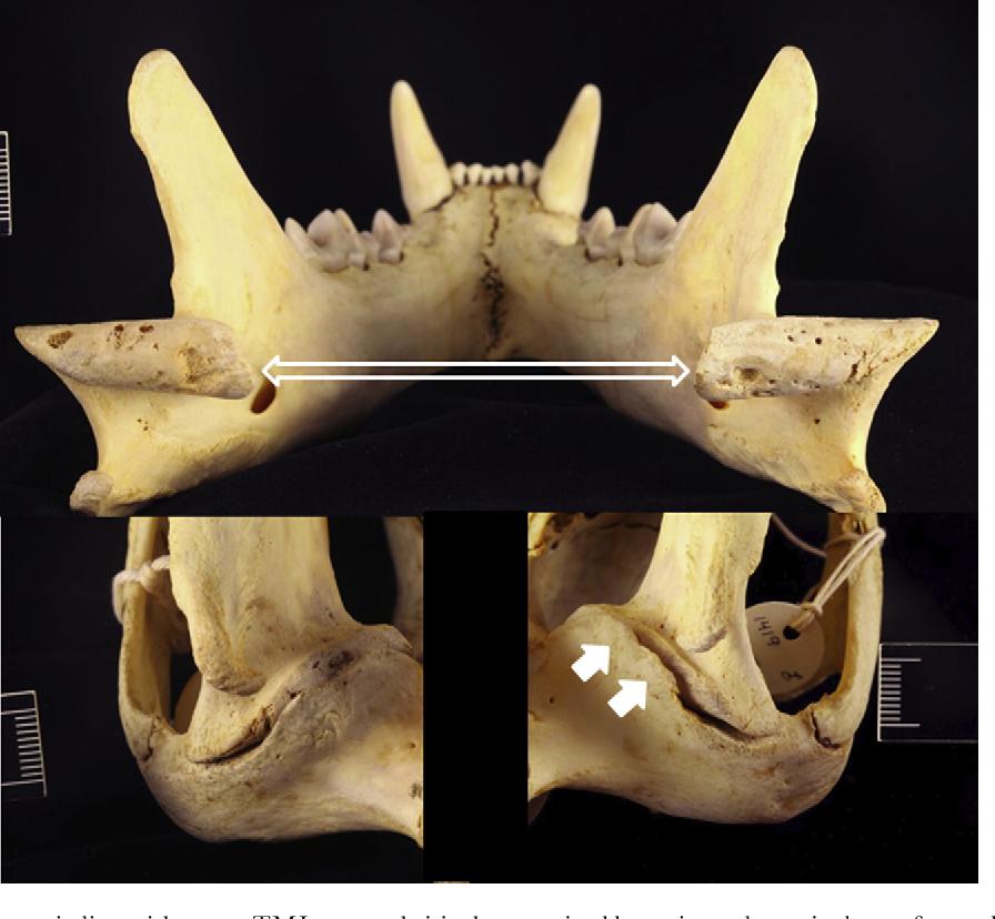 Figure 10 from Dental and Temporomandibular Joint Pathology
