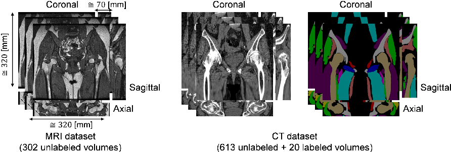 Figure 1 for Cross-modality image synthesis from unpaired data using CycleGAN: Effects of gradient consistency loss and training data size