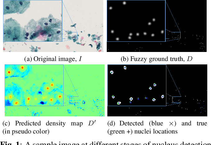 Figure 1 for A Deep Learning based Pipeline for Efficient Oral Cancer Screening on Whole Slide Images