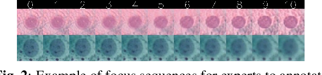 Figure 3 for A Deep Learning based Pipeline for Efficient Oral Cancer Screening on Whole Slide Images