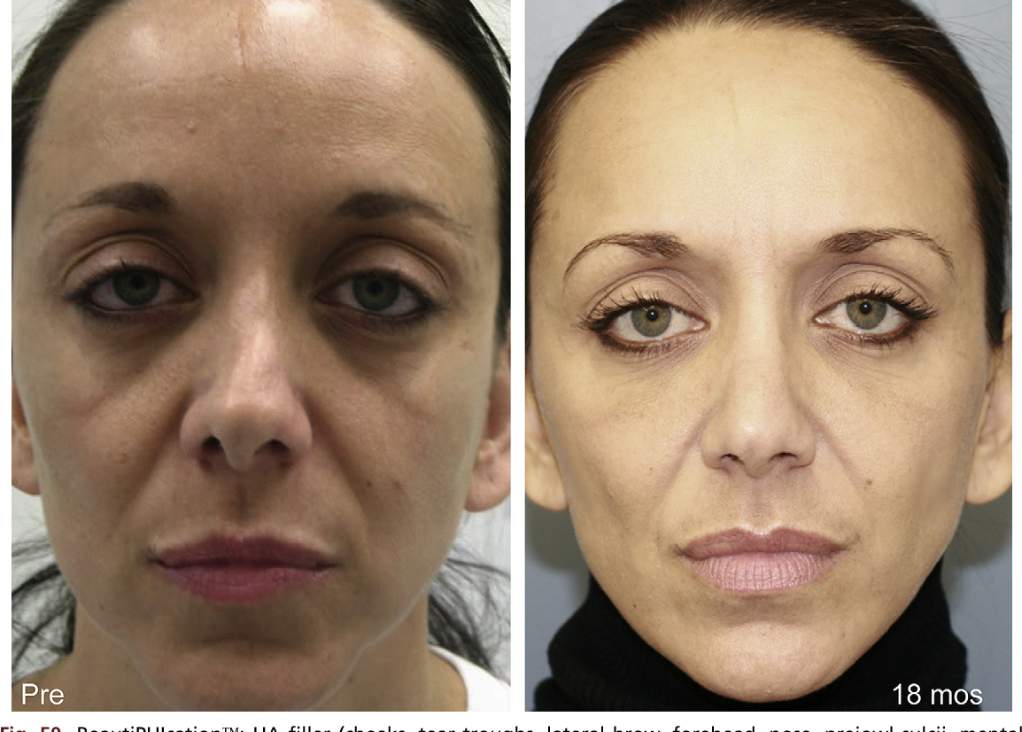 Figure 6 from BeautiPHIcation™: a global approach to facial beauty