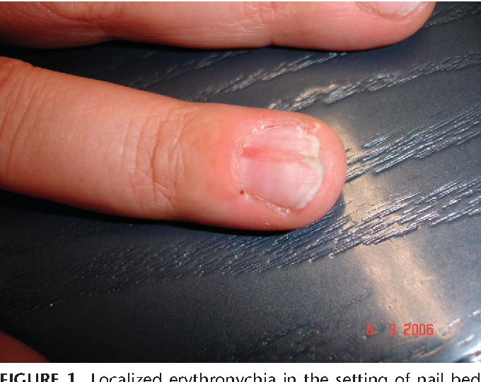 Figure 14 from Tumors of the nail unit. A review. Part I: acquired ...