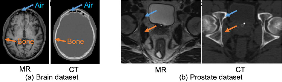 Figure 1 for Deep Embedding Convolutional Neural Network for Synthesizing CT Image from T1-Weighted MR Image