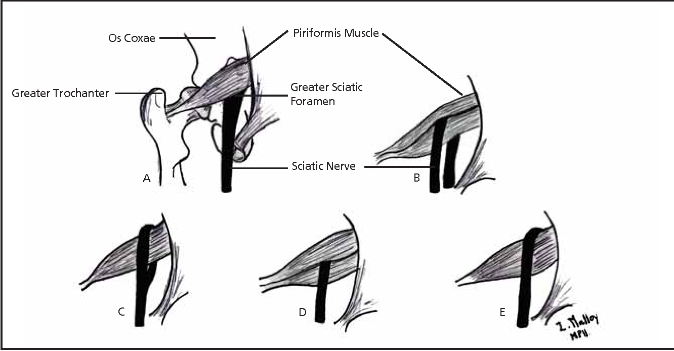 Figure 2 from Diagnosis and management of piriformis syndrome: an ...