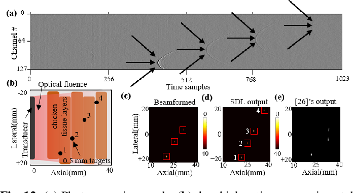 Figure 2 for Simultaneous Denoising and Localization Network for Photoacoustic Target Localization