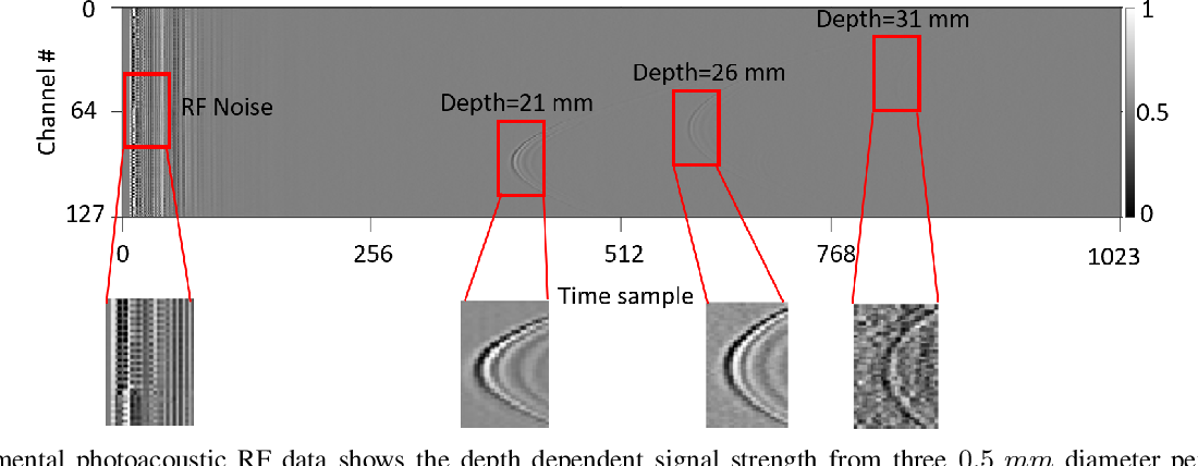 Figure 1 for Simultaneous Denoising and Localization Network for Photoacoustic Target Localization