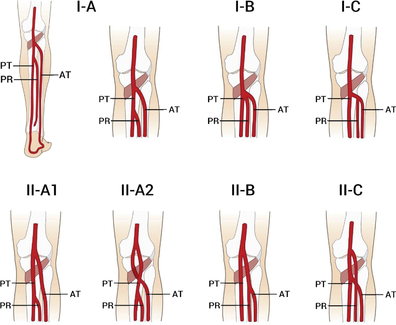 The evidence-based surgical anatomy of the popliteal artery and the ...