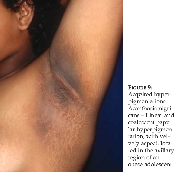 FIGURE 9 Acquired Hyperpigmentations Acanthosis Nigricans Linear And Coalescent Papular Hyperpigmentation With