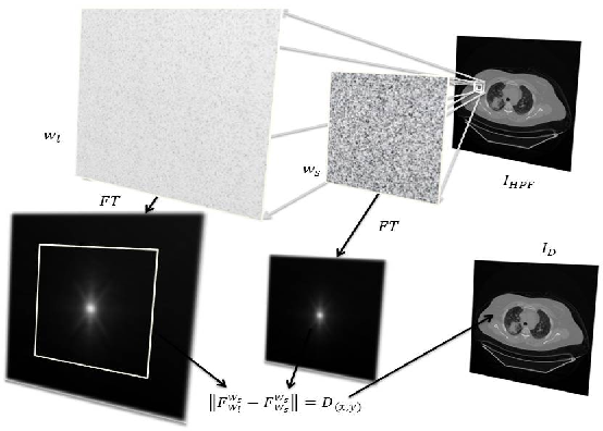 Figure 2 for Automated Selection of Uniform Regions for CT Image Quality Detection