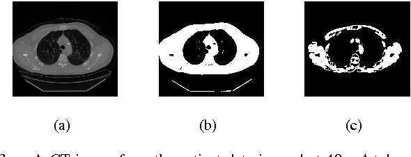 Figure 3 for Automated Selection of Uniform Regions for CT Image Quality Detection