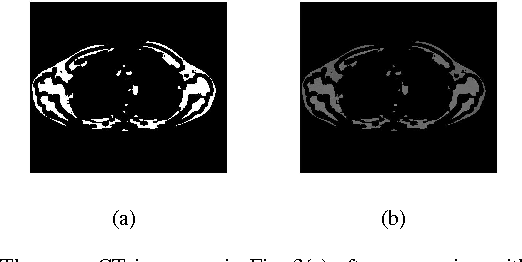Figure 4 for Automated Selection of Uniform Regions for CT Image Quality Detection