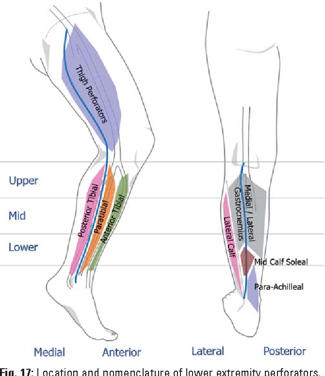 Duplex Ultrasound In The Assessment Of Lower Extremity Venous
