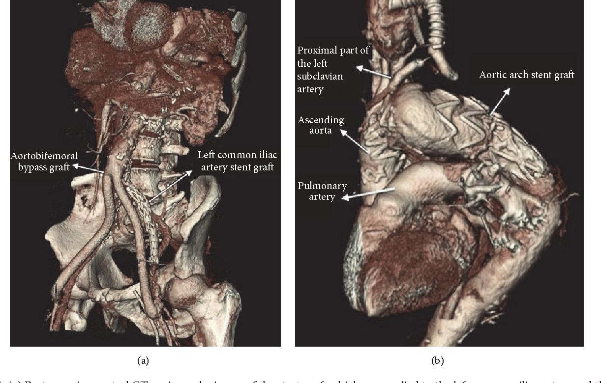 Endovascular Stent Grafting For Aortic Arch Aneurysm In Aortoiliac