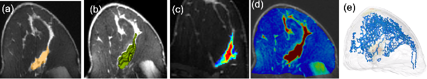 Figure 1 for TopoTxR: A Topological Biomarker for Predicting Treatment Response in Breast Cancer