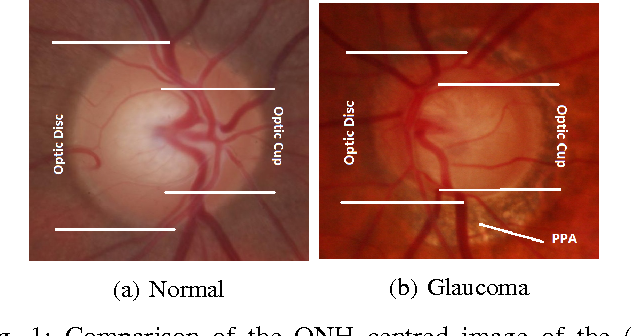glaucoma classification using regional wavelet features of the onh