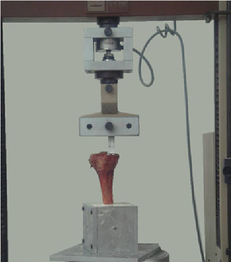 Fig. 3 Maximum fracture load (Fmax) in kN for group A (cemented) and group B (cementless)