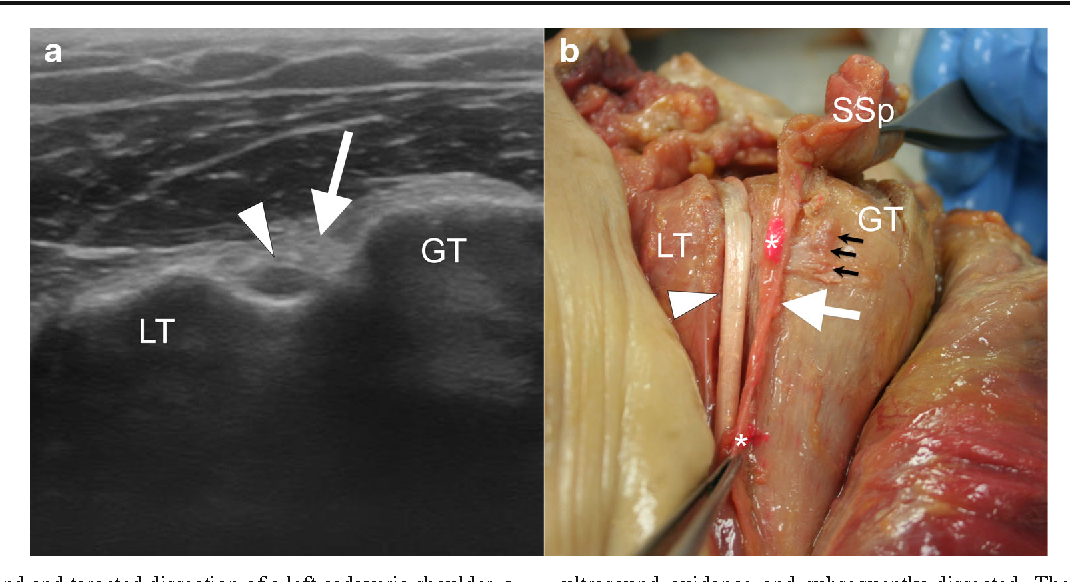 The Aponeurotic Expansion Of The Supraspinatus Tendon Anatomy And