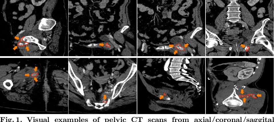 Figure 1 for Multi-Scale Attentional Network for Multi-Focal Segmentation of Active Bleed after Pelvic Fractures
