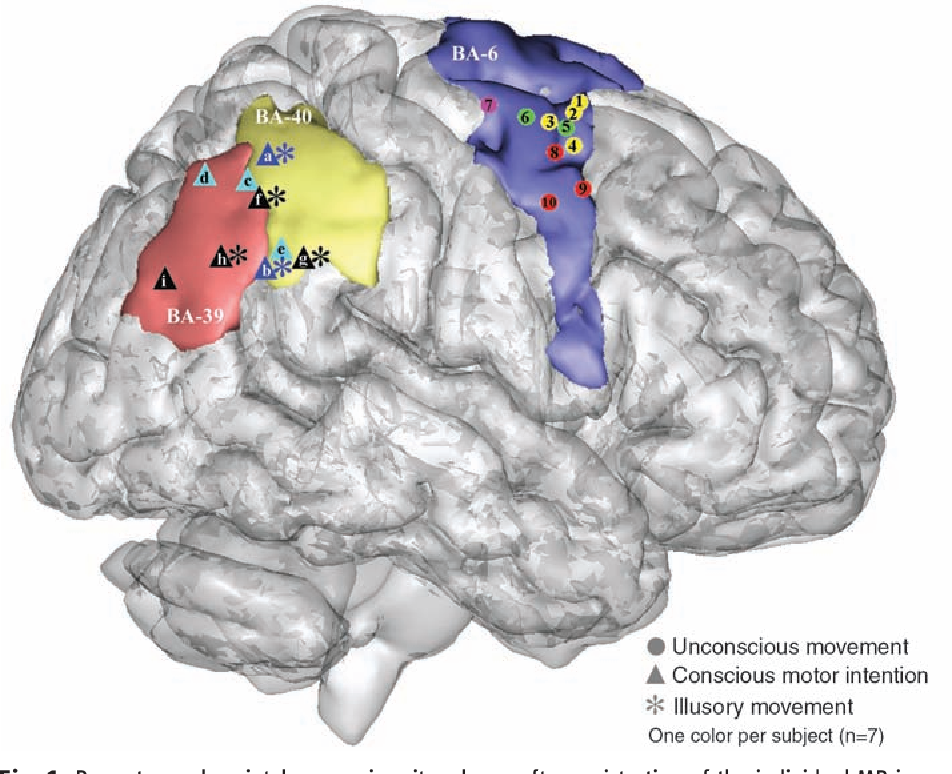 Figure 1 from Movement intention after parietal cortex stimulation ...