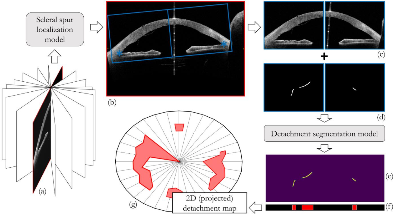 Figure 1 for Quantifying Graft Detachment after Descemet's Membrane Endothelial Keratoplasty with Deep Convolutional Neural Networks