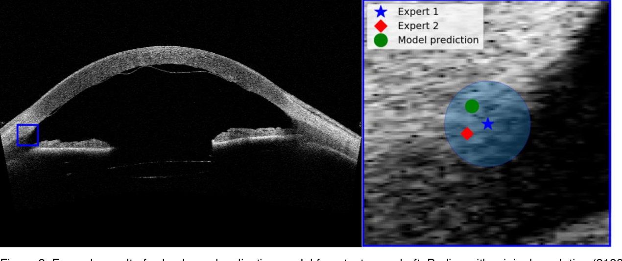 Figure 4 for Quantifying Graft Detachment after Descemet's Membrane Endothelial Keratoplasty with Deep Convolutional Neural Networks