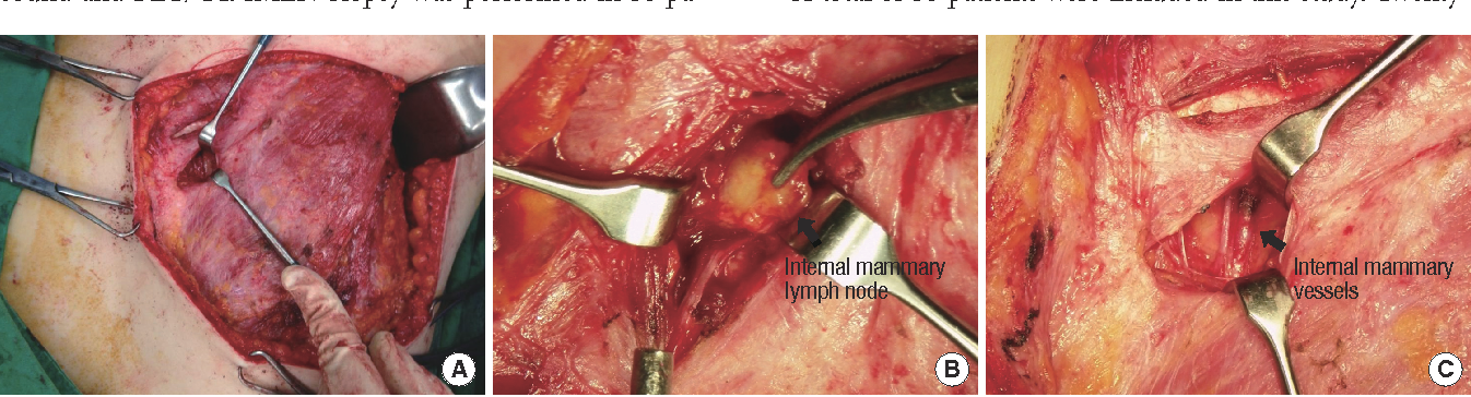 The Metastatic Rate of Internal Mammary Lymph Nodes When Metastasis ...