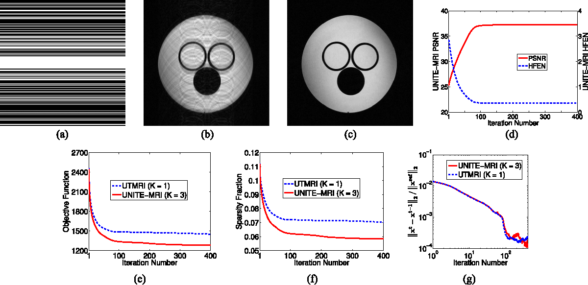Figure 2 for Data-Driven Learning of a Union of Sparsifying Transforms Model for Blind Compressed Sensing