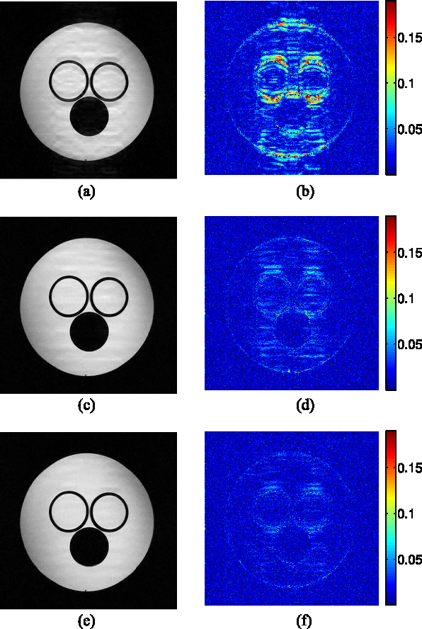 Figure 4 for Data-Driven Learning of a Union of Sparsifying Transforms Model for Blind Compressed Sensing