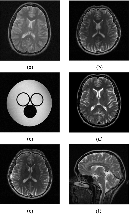 Figure 1 for Data-Driven Learning of a Union of Sparsifying Transforms Model for Blind Compressed Sensing