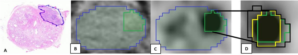Figure 4 for Convolutional neural network based deep-learning architecture for intraprostatic tumour contouring on PSMA PET images in patients with primary prostate cancer