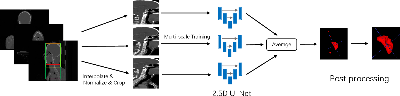 Figure 3 for Automatic Segmentation of Gross Target Volume of Nasopharynx Cancer using Ensemble of Multiscale Deep Neural Networks with Spatial Attention
