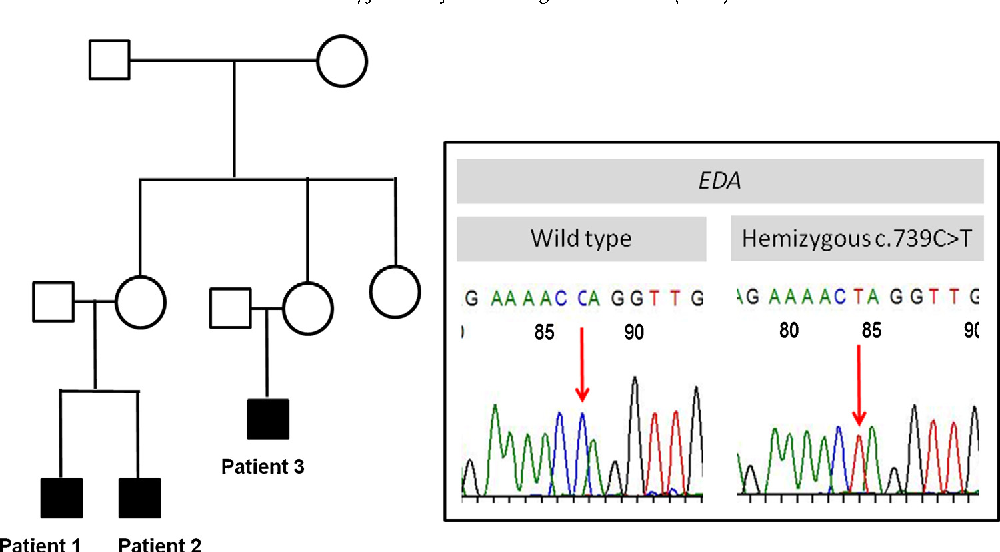 Figure 2 from A new EDA gene mutation in a family of X