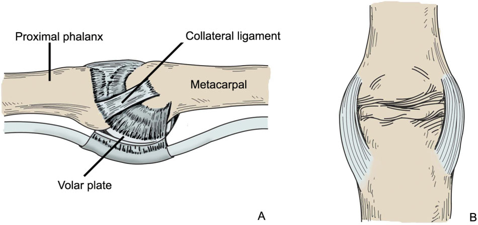 Figure 1 From Injury To Ulnar Collateral Ligament Of Thumb