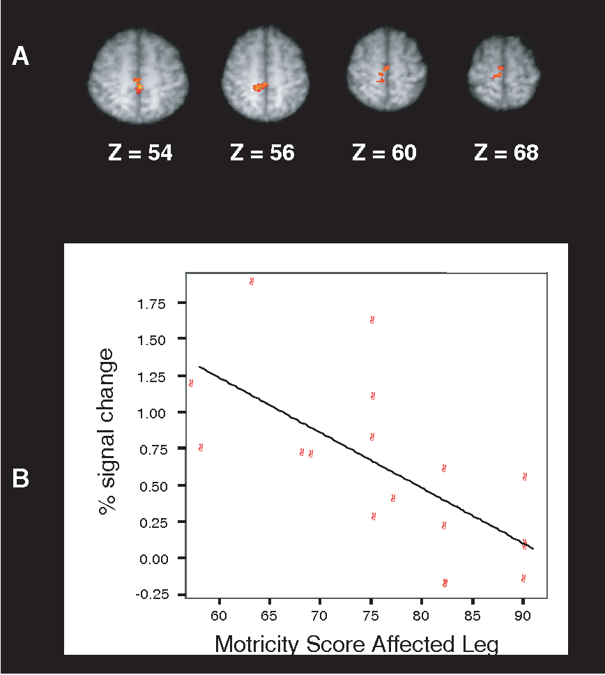 Figure 3. Influence of lower limb function on brain activation. A, Brain regions in which active movement-associated brain activation shows a significant negative correlation with Motricity Score of the affected leg. Increased activation in SMC and SMA of the unlesioned hemisphere ipsilateral to movement is noted with decreasing functional strength (mixed effects analyses; Z 3.1; corrected cluster significance threshold P 0.01). B, Correlation between activation signal changes within the unlesioned hemisphere and disability for active movement. Activation data from an SMC ROI in the undamaged hemisphere (defined by the SMC region of activation found in the contrast between patients with lower Motricity Score and matched healthy control subjects during active movement versus rest) using the entire patient group was strongly correlated (r 0.76) with Motricity Score for the affected leg (COPE, coefficient of parameter estimates).