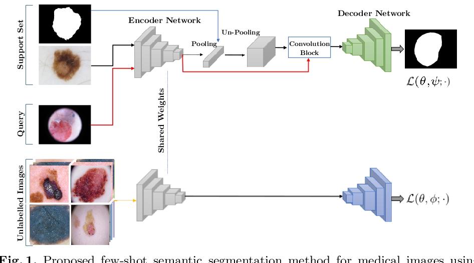 Figure 1 for Semi-supervised few-shot learning for medical image segmentation