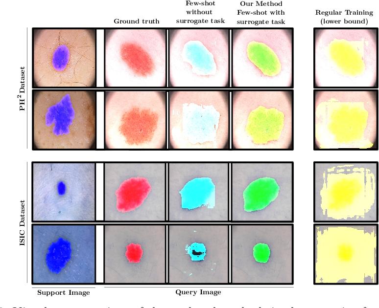 Figure 4 for Semi-supervised few-shot learning for medical image segmentation